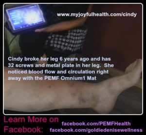 Cindy Broke Her Leg PEMF Omnium1 Mat Help